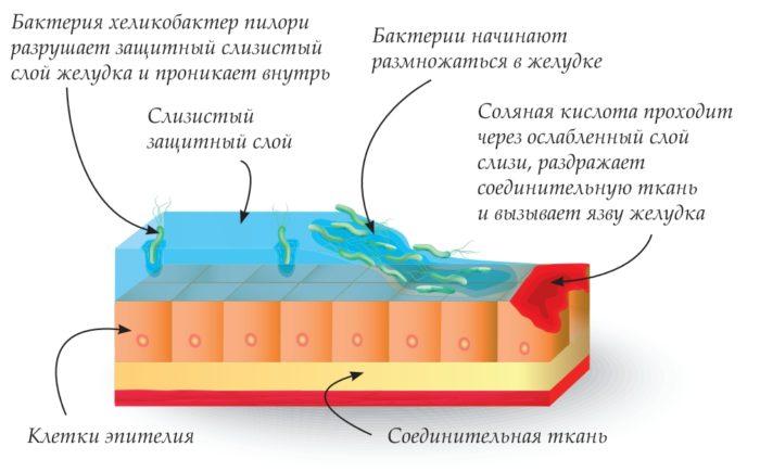 бактерия внутри кишечника